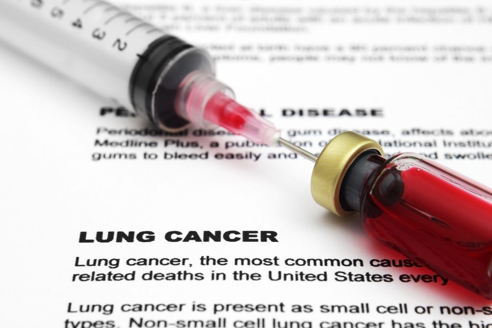 Bristol-Myers Squibb NSCLC Treatment Results Announced