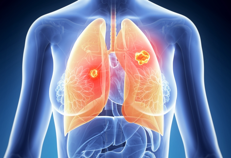 Parkinson Gene Associated With Familial Lung Cancer